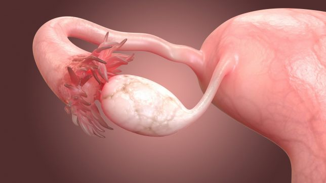 infertility ovary